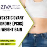 Polycystic Ovary Syndrome (PCOS) and Weight Gain